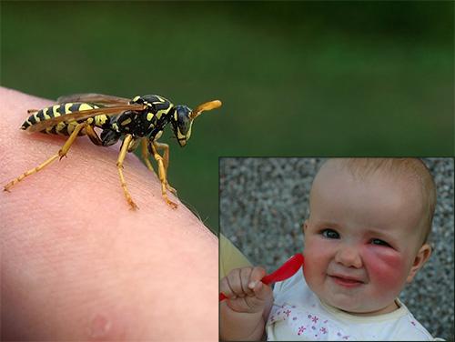 Дядо пчелар съветва: Направете това при ужилване от оса, стършел или пчела и ядове няма да имате, върши чудеса