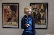 Истински ад: да си албинос в Африка