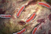 Откриха лептоспироза в пазарджишко! Болестта е изключително опасна.