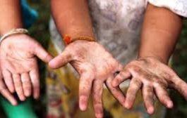 Епидемия от хепатит А заради лоша лична хигиена!