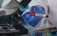 Ваксините срещу коронавируса ще са задължителни? Подготвят се протести срещу това.